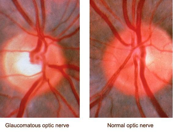 optic-nerve